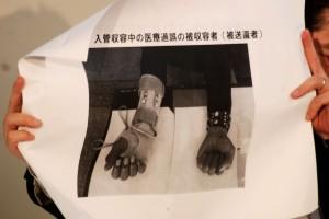 入管収容時に右手を怪我。適切な治療なく指が曲がらなくなった男性の写真。(撮影/西中誠一郎)